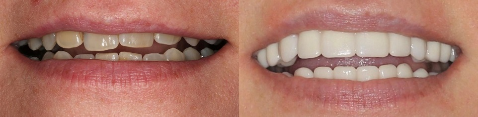 dental implants before and after all on 4